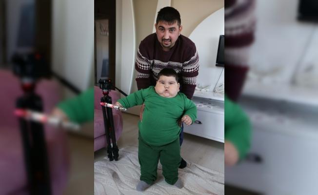 2 yaşında 37 kiloya ulaşan Yağız bebek ilacına kavuştu
