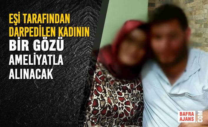 Eşi Tarafından Darpedilen Kadının Bir Gözü Ameliyatla Alınacak