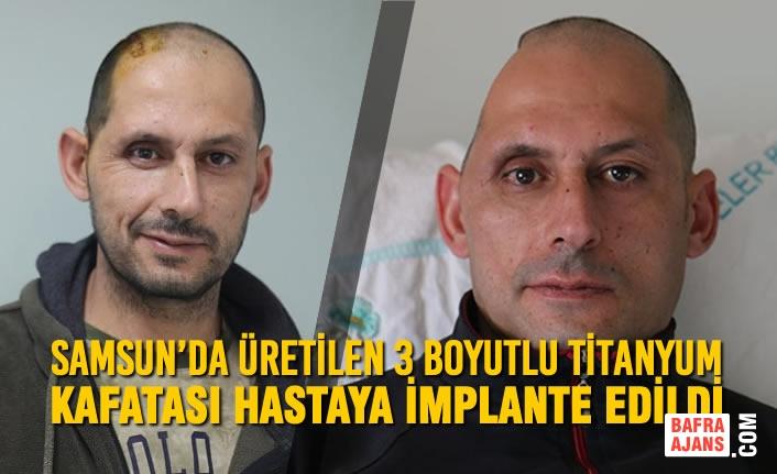 Samsun'da Üretilen 3 Boyutlu Titanyum Kafatası Hastaya İmplante Edildi