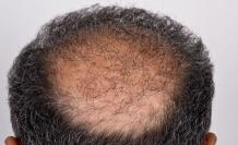 Saç Ekimi Ameliyatı İçin Kaliteli Merkezleri Tercih Edin