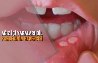 Ağız İçi Yaraları Dil Kanserinin Habercisi