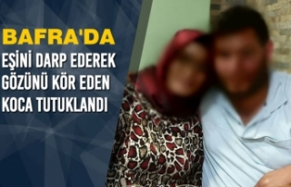 Eşini Darp Ederek Gözünü Kör Eden Koca Tutuklandı