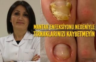 Mantar Enfeksiyonu Nedeniyle Tırnaklarınızı Kaybetmeyin