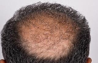 Saç Ekimi Ameliyatı İçin Kaliteli Merkezleri Tercih...