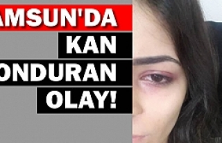 Samsun'da Kan Donduran Olay!